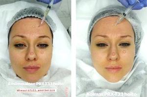 Nuorekkaampi iho ilman neuloja tai kauneusleikkausta -PRX-T33 hoito